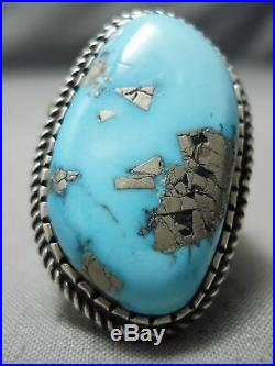 Huge And Thick! Vintage Navajo Old Morenci Turquoise Sterling Silver Ring